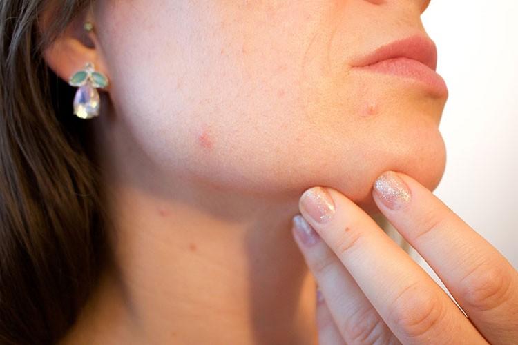 Правильно ухаживать за кожей лица